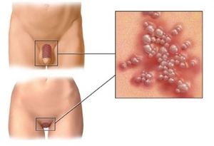 Obat Herbal Penyakit Herpes Paling Ampuh